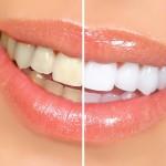 چگونه دندانی سفید و شفاف داشته باشیم؟