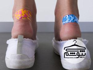 علت تاول پا چیست و چگونه آن را درمان کنیم؟