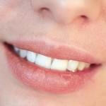راه های عملی برای درمان خشکی لب ها