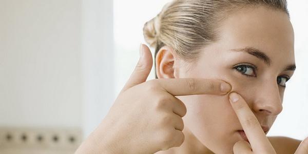 ۷ ماده غذایی که جوش صورت را تشدید می کنند
