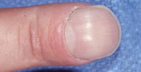 8 اتفاق عجیبی که امکان دارد برای ناخن های شما بیفتد و دلیل آن ها.