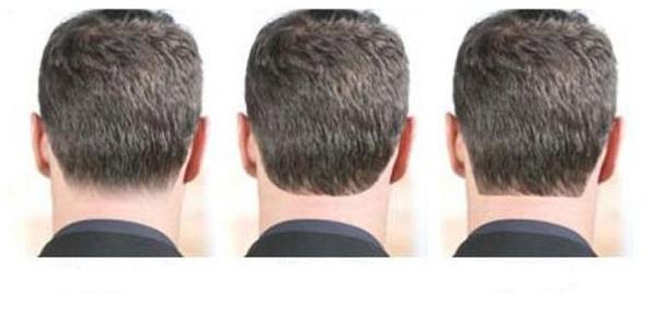 چگونه و از کجا خط موی گردن را تعیین کنیم؟