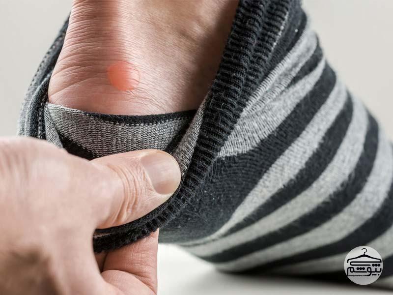 راههای درمان تاول پا چیست؟