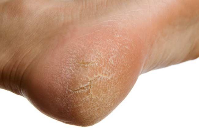 داروی خانگی برای درمان ترک کف پا