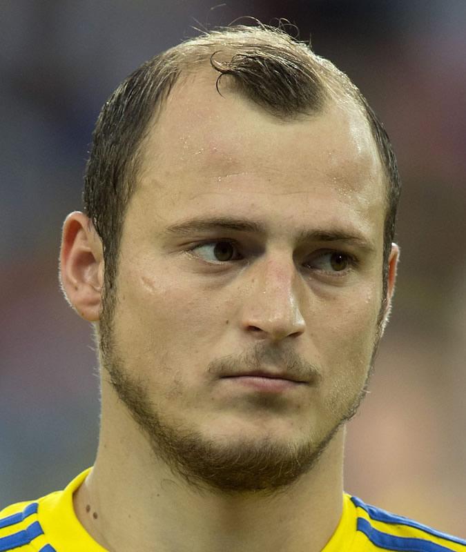 بدترین مدل موهای یورو ۲۰۱۶