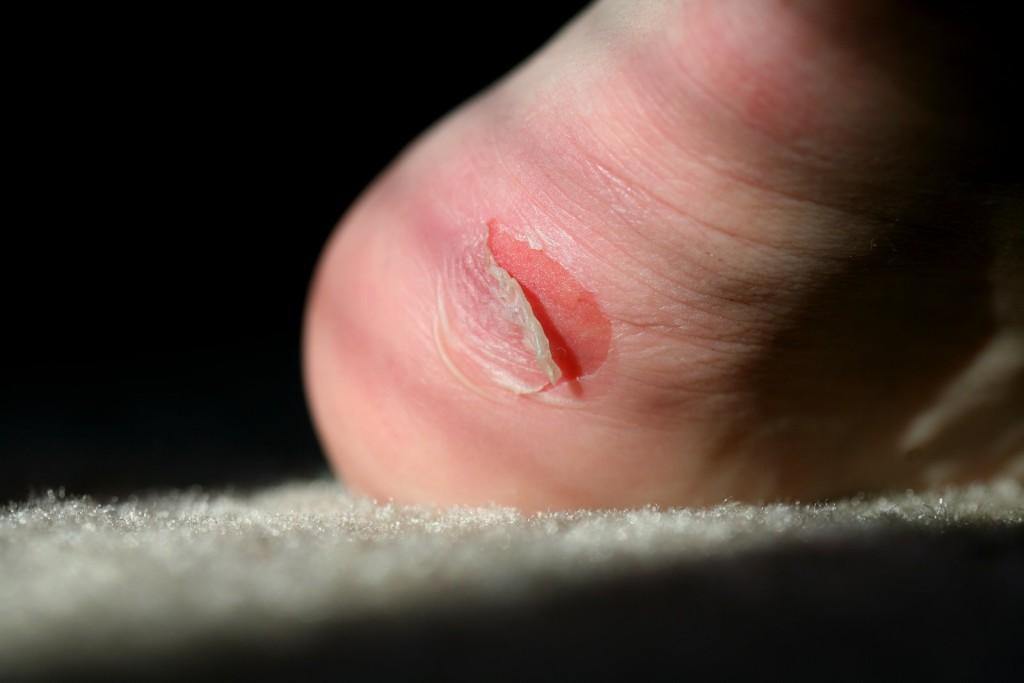چه کنیم حین ورزش پایمان تاول نزند؟