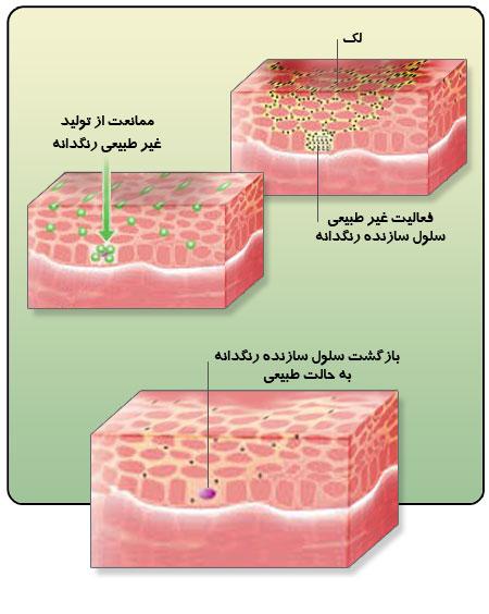 لک پوستی چگونه درمان می شود؟