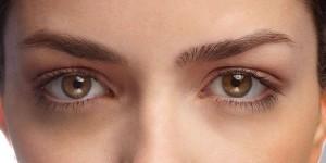 راههای از بین بردن حلقه سیاه زیر چشم