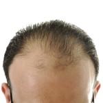 ریزش مو در بیست سالگی و راه ترمیم آن
