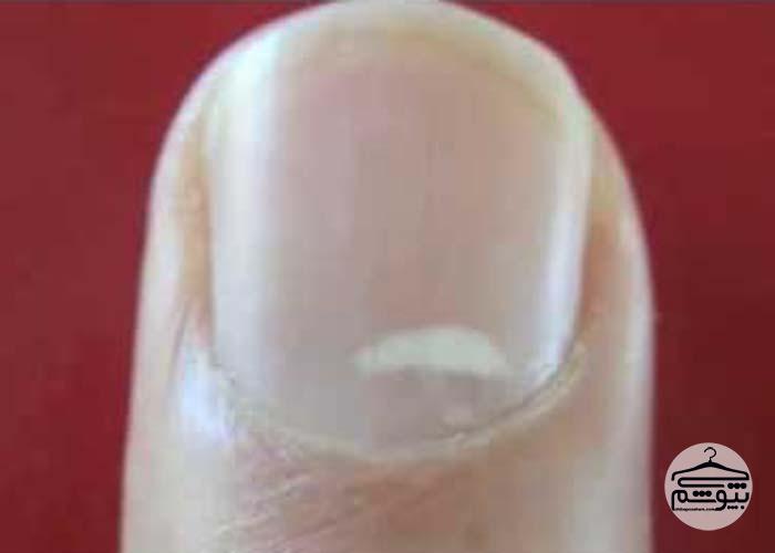 لکههای سفید روی ناخن چرا ایجاد میشوند؟