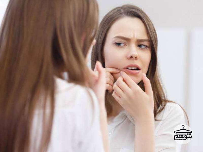 درمان جوش سر سیاه صورت و بینی با این چند روش