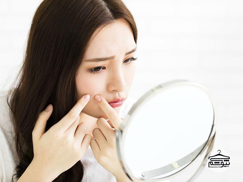 جوش صورت : درمان جوشِ صورت با راهکارهایی بسیار ساده و کاربردی