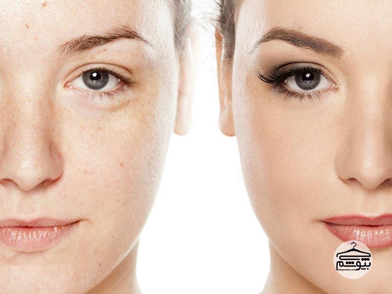 جوش صورت : درمان جوشِ صورت با راهکارهایی بسیار ساده و کاربردیجوش صورت : درمان جوشِ صورت با راهکارهایی بسیار ساده و کاربردی