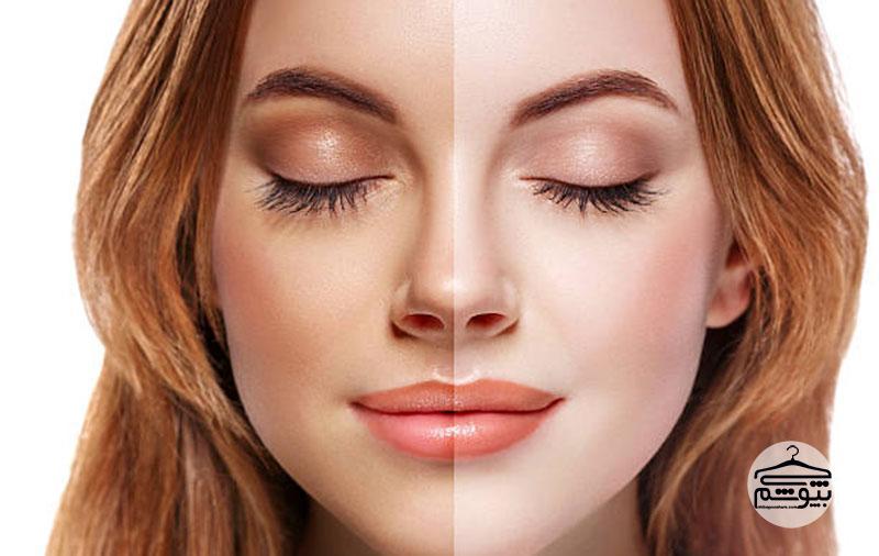 برنزه کردن پوست و آفتاب گرفتن در فصل تابستان ؛ اصول و روش ها