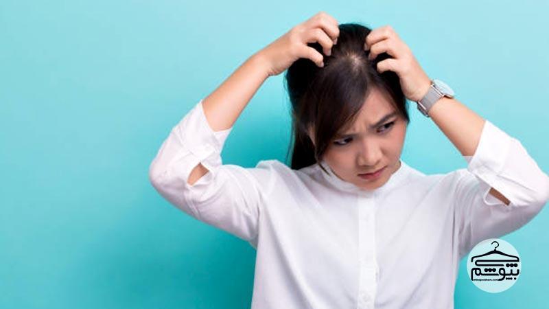 شوره سر که بر اثر خشکی پوست ایجاد میشود