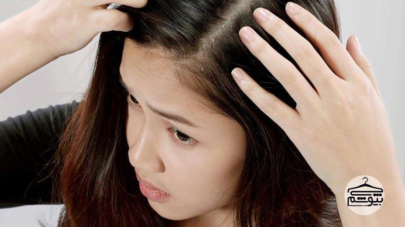 شوره سر که بر اثر چربی بیش از حد پوست ایجاد میشود