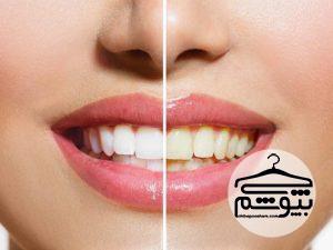 کدام خوراکیها دندانها را زرد میکنند؟