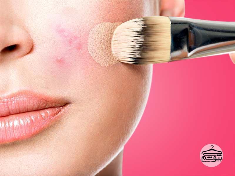چگونه جوشهای صورت را با آرایش پوشش دهیم؟