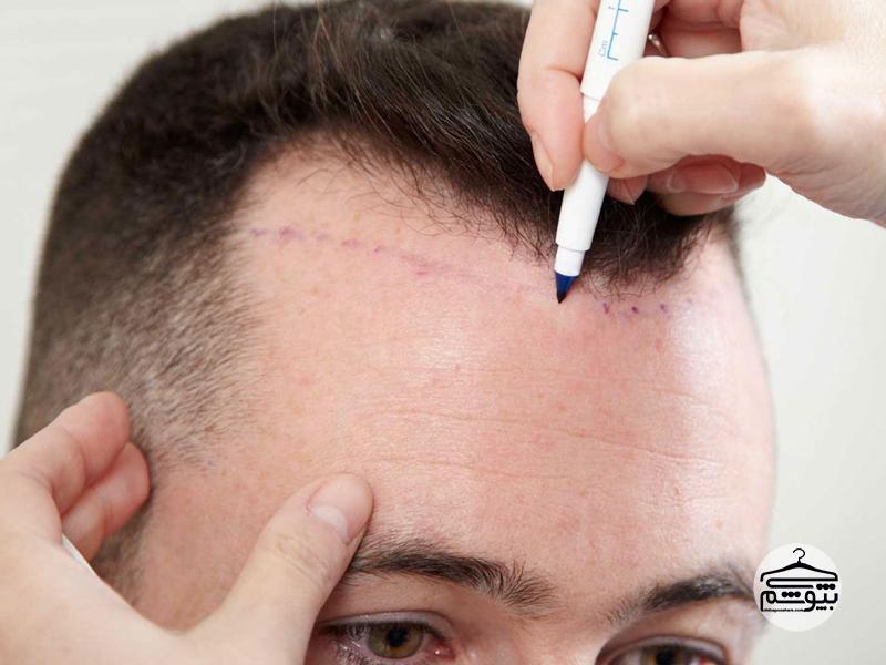 تفاوت پروتز مو و کلاه گیس در چیست؟