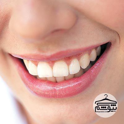 آیا سفید کردن دندانها با بلیچینگ صحیح است؟