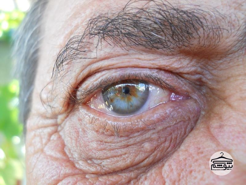 آیا مالیدن چشم باعث چروک آن میشود؟
