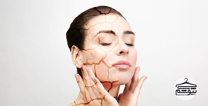 خشکی پوست؛ علل و راههای درمان با ماسکهای خانگی